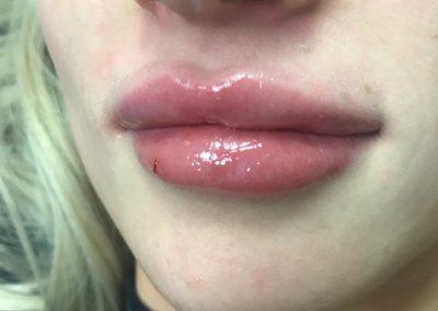 LipS622