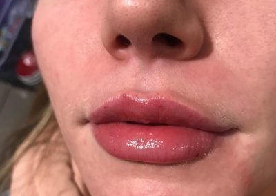 LipS646